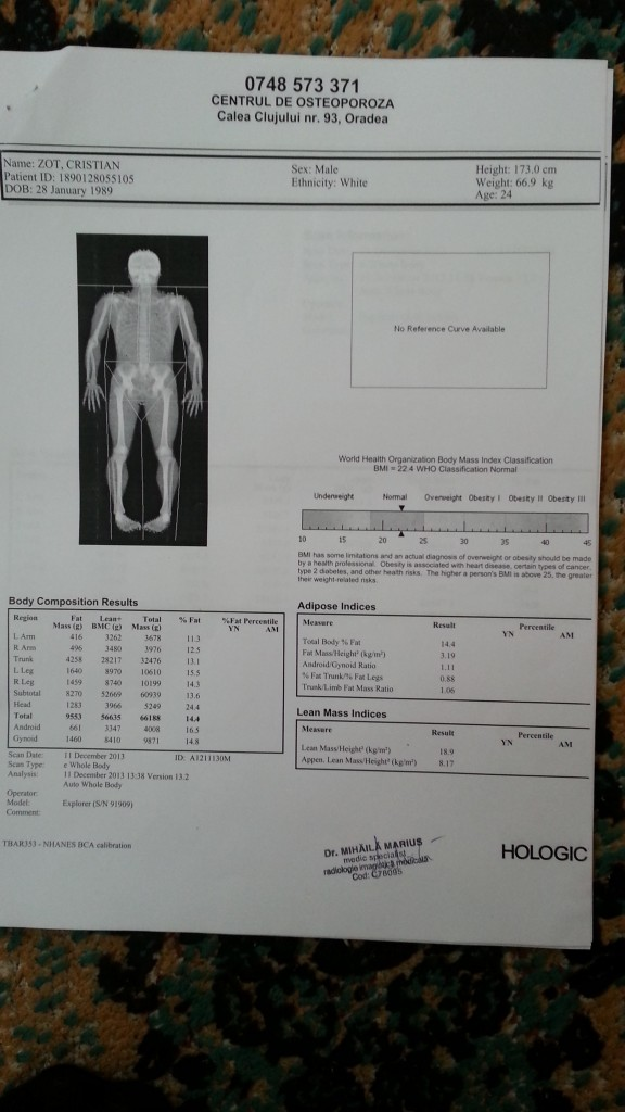 DXA Scan - December 11, 2013 - 14.4% Bodyfat